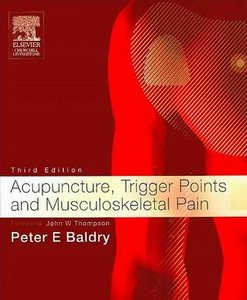 Acupuncture, Trigger Points and Musculoskeletal Pain free download