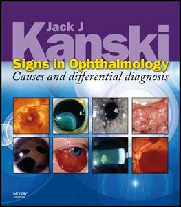 Signs in Ophthalmology: Causes and Differential Diagnosis free download