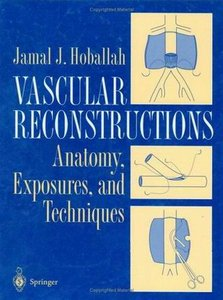 Vascular Reconstruction: Anatomy, Exposure and Techniques free download