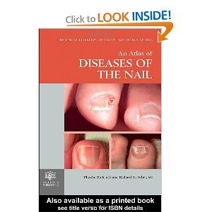 An Atlas of Diseases of the Nail free download
