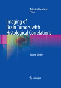 Imaging of Brain Tumors with Histological Correlations, Second Edition free download