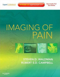 Imaging of Pain: Expert Consult Online Features and Print (Expert Consult Title: Online   Print) free download