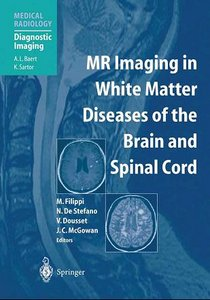 MR Imaging in White Matter Diseases of the Brain and Spinal Cord free download