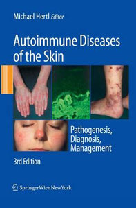 Autoimmune Diseases of the Skin: Pathogenesis, Diagnosis, Management free download