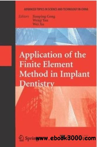 Application of the Finite Element Method in Implant Dentistry free download