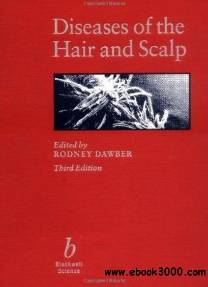 Diseases of the Hair and Scalp (3rd edition) free download