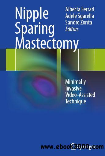 Nipple Sparing Mastectomy: Minimally Invasive Video-Assisted Technique free download