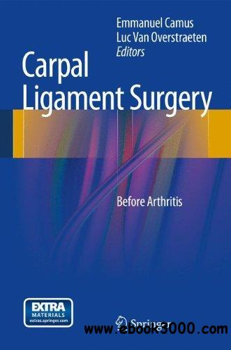 Carpal Ligament Surgery: Before Arthritis free download