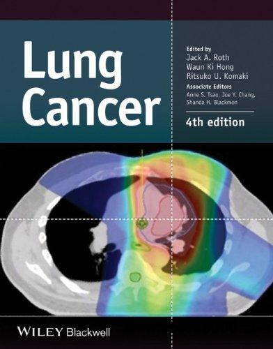 Lung Cancer, 4th Edition free download