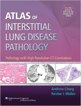 Atlas of Interstitial Lung Disease Pathology: Pathology with High Resolution Ct Correlations free download