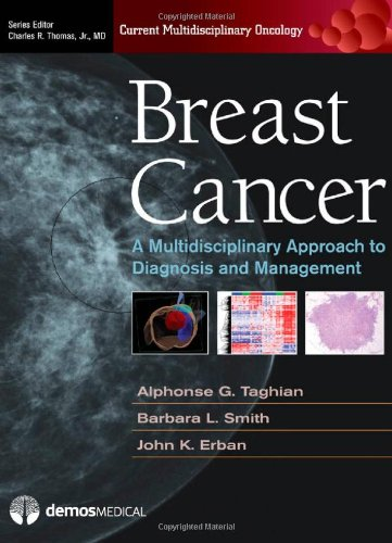Breast Cancer: A Multidisciplinary Approach to Diagnosis and Managmenet free download
