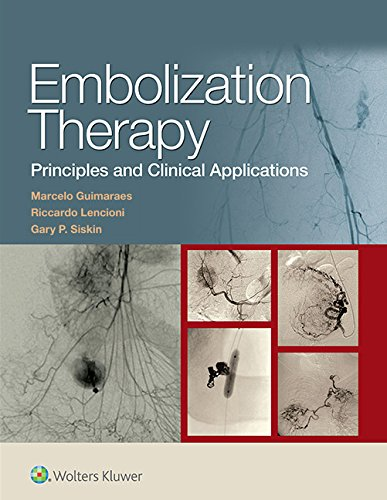 Embolization Therapy: Principles and Clinical Applications free download