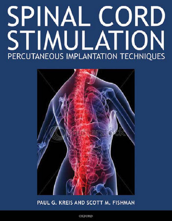 Spinal Cord Stimulation Implantation: Percutaneous Implantation Techniques free download