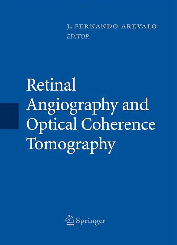 retinal angiography and optical coherence tomography