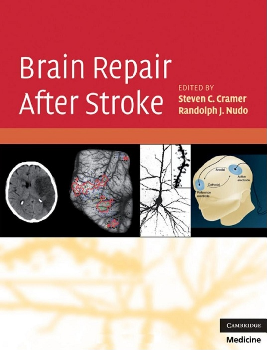 Brain Repair After Stroke free download