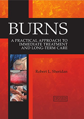 Burns: A Practical Approach to Immediate Treatment and Long Term Care free download