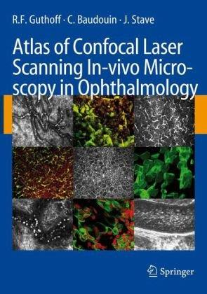 Atlas of Confocal Laser Scanning In-vivo Microscopy in Ophthalmology free download
