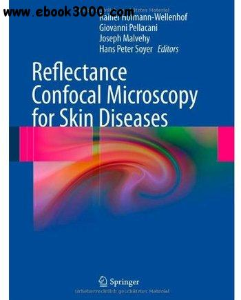 Reflectance Confocal Microscopy for Skin Diseases free download