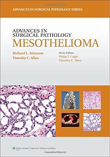the relationship between gene therapy and mesothelioma Gene: muc1 mucin 1, cell further, the relationship between therapy efficacy/toxicity and genetic polymorphisms associated the expression of mesothelioma.